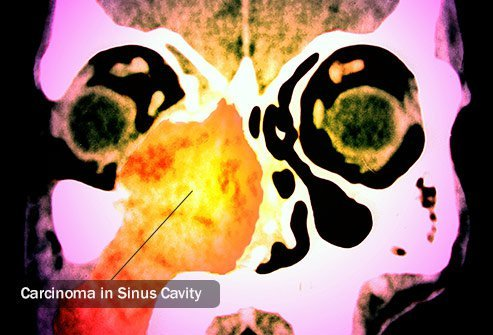 Several types of cells can lead to nasal cavity cancer.