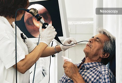 Surgery, chemotherapy, and radiation therapy may be used to fight nasal cavity cancer.