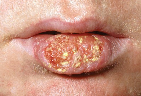 Sometimes dentists are the first to discover oral cancer.