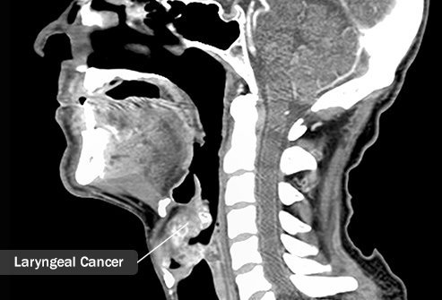 Alcohol and tobacco abuse add to the risk of laryngeal cancer.