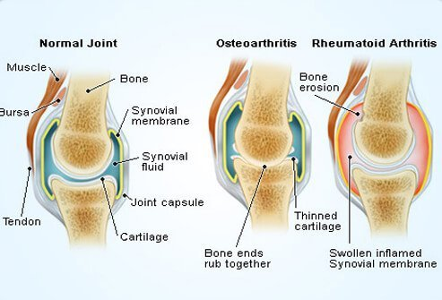An illustration showing the differences between a normal, healthy joint, a joint affected by osteoarthritis, and one affected by rheumatoid arthritis.
