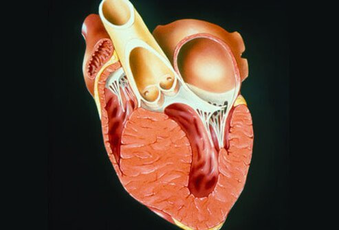 Cardiomyopathy may impair the heart's ability to pump blood to the rest of the body.