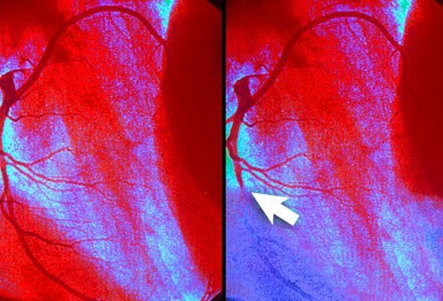 Angiogram shows myocardial infraction.