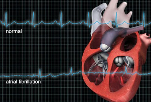 Illustration showing a normal EKG and EKG with atrial fibrillation.
