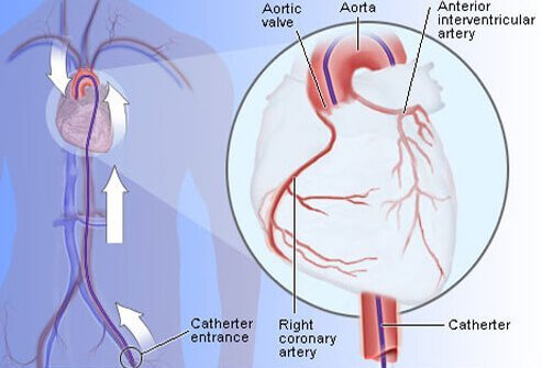 Coronary angiography via cardiac catheterization is considered the