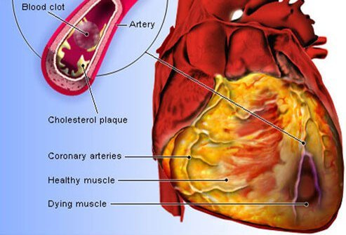 Blockage of the coronary arteries by plaque may cause a heart attack (myocardial infarction) or a fatal rhythm disturbance (sudden cardiac arrest).
