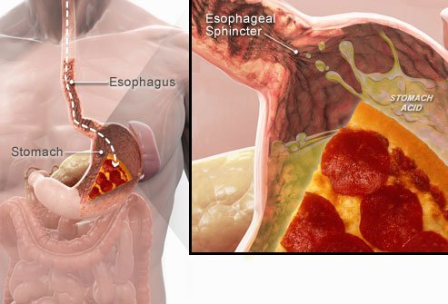 The lower esophageal sphincter separates the esophagus from the stomach.