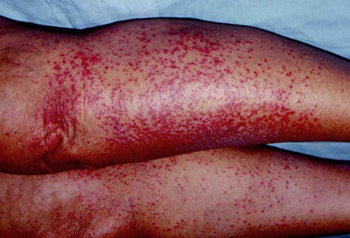 The sweat glands are blocked and the inflammation causes a red color to the rash known as rubra.