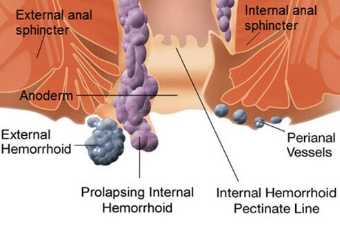 External hemorrhoids can be felt as bulges at the anus, but they usually cause few of the symptoms that are typical of internal hemorrhoids.