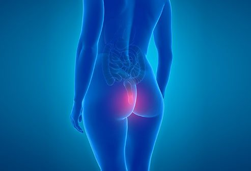 Hemorrhoids themselves are rarely life-threatening.
