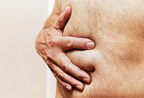 The doctor may recommend watchful waiting for a small hernia.