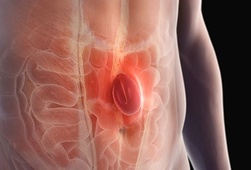A ventral hernia develops between the belly button and the chest.