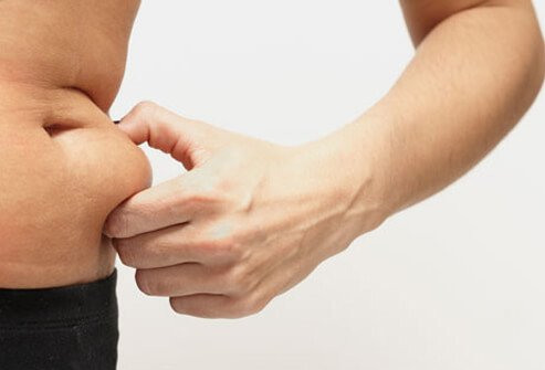 Photo of man squeezing fat, a risk factor of high blood pressure.