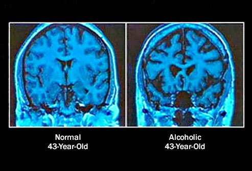 Long-term heavy drinking is associated with a shrinking brain.