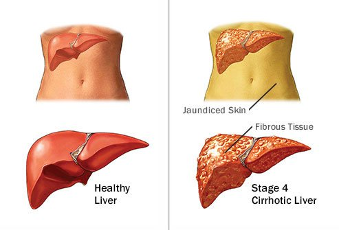 Long-tern effects of alcohol on the body include liver disease.