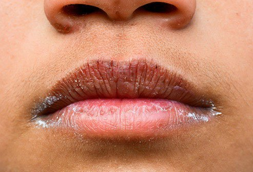 Your mouth could get dry and cracked at the corners as your body draws fluid from it.