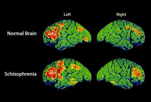 Schizophrenia causes a loss of gray and white matter in the brain.