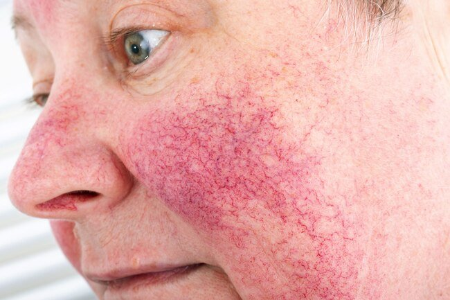 Drinking alcohol may trigger a rosacea flare.