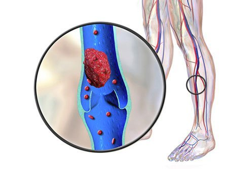 Blood clots are more common in taller people.