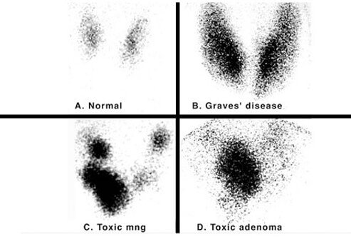 Iodine 123 nuclear scintigraphy: scans of a normal thyroid gland (A) and common hyperthyroid conditions with elevated radioiodine uptake, including Graves' disease (B), toxic multinodular goiter (C), and toxic adenoma (D).