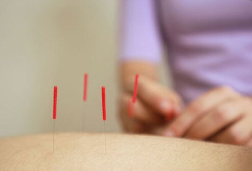 An acupuncture treatment.