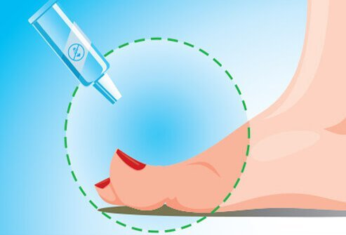 Several over-the-counter treatments for ingrown toenails are available.