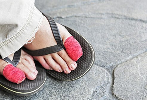When home remedies aren't enough to treat an ingrown toenail or the condition is associated with severe pain or infection, surgery may be necessary.