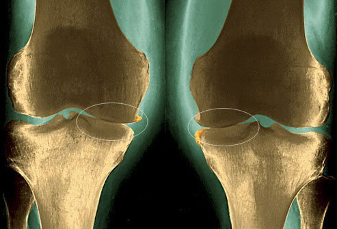 The cartilage that cushions the knee joint can wear away as you age.