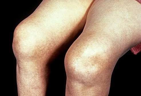 Rheumatoid arthritis is a chronic illness in which the body's immune system mistakenly attacks the joints, causing pain and swelling.