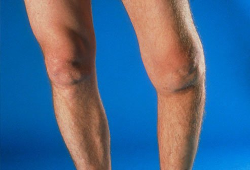 Knee replacement surgery may help you if other arthritis treatments do not work.