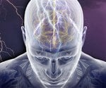 Epilepsy:Symptoms, Stages and Treatment