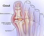 Gout: See & Learn About Gouty Arthritis Attacks