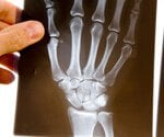 Rheumatoid Arthritis Symptoms and Treatment