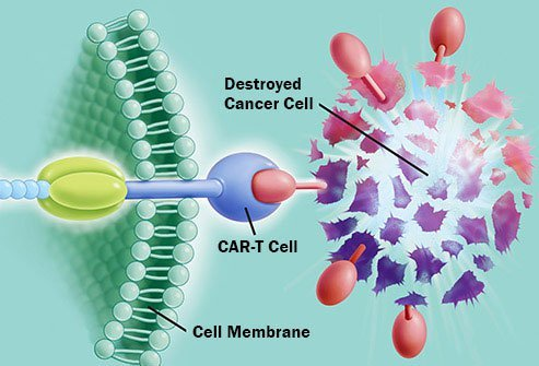 CAR T is a new kind of customized immunotherapy.