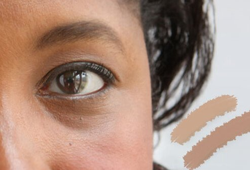 Use concealer to reduce the appearance of dark under eye circles.