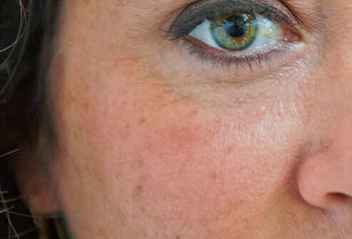 You can fade age spots with creams containing hydroquinone.