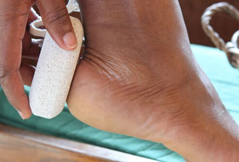 Use a pumice stone to remove dead skin from the heels and balls of your feet.