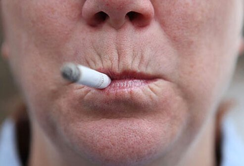 Smoking contributes to skin aging and heart disease risk.