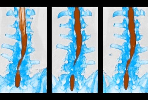CT scan of spinal stenosis.