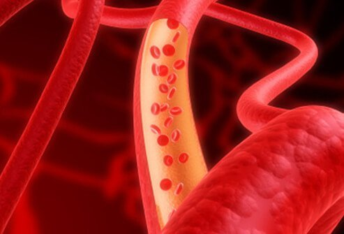 When blood flow is too low to deliver adequate oxygen to the body's organs, they may not function normally and may be permanently damaged.