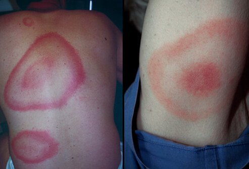 Lyme disease initially affects the skin, causing an expanding reddish rash similar to a target or bull's-eye.