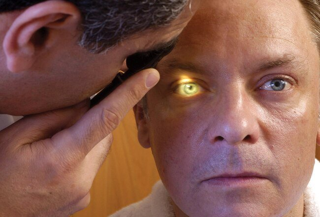 An eye doctor can dilate your pupils to examine the back of your retina.