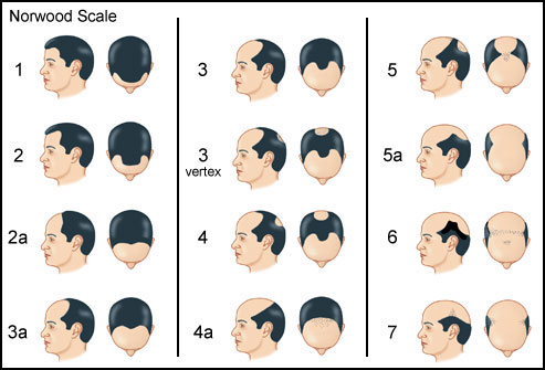 Male-pattern baldness proceeds in a predictable pattern.
