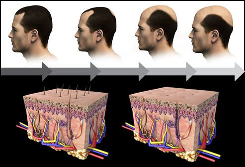 The hormone DHT causes follicles to shrink and inhibits hair growth.