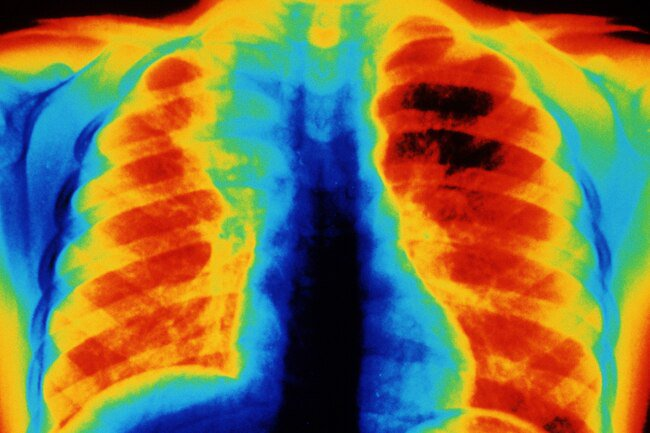 Your lungs contain hundreds of millions of tiny air sacs called alveoli.