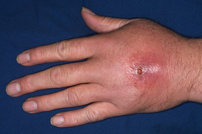 This can cause an infection that can be serious or life-threatening.