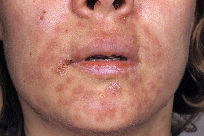 Syphilis starts as a sore on your genitals, rectum, or mouth.