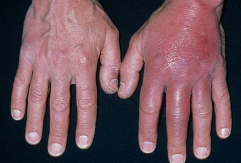 Cellulitis on the hands.