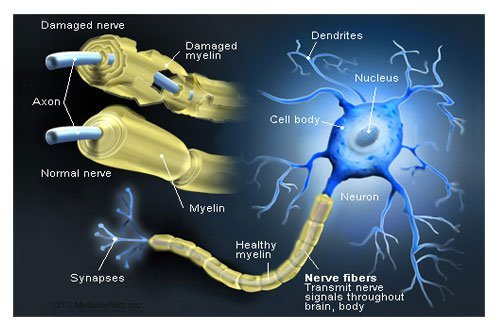 An illustration of the nerve fibers and the attack of myelin in multiple sclerosis.