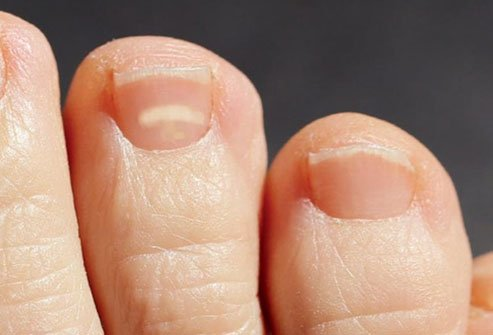 White spots on nails are common and usually harmless.